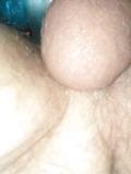 bolas peludas